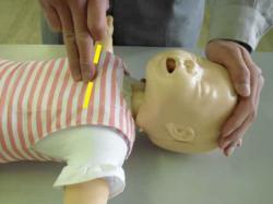 乳児の胸骨圧迫